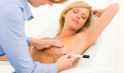 Brustverkleinerungen